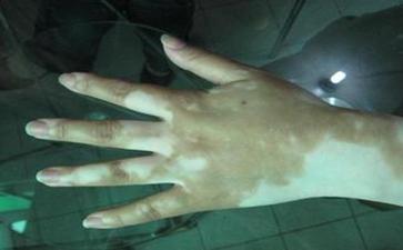 手部白癜风治疗方法是怎样的
